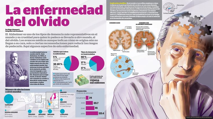 Infografía del Alzheimer  -  Infographic of the Alzheimer