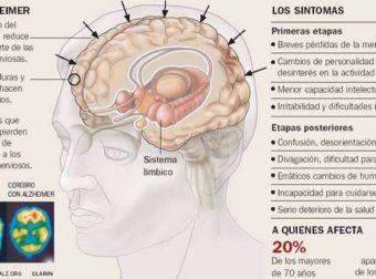 Alzheimer – #Infografia #Alzheimer #Demencias