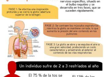 Cómo reconocer los diferentes tipos de tos – #Infografia #Alzheimer #Demencias