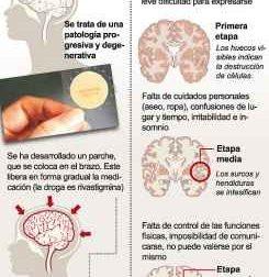 Características de la Enfermedad de Alzheimer – #Infografia #Alzheimer #Demencias