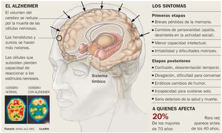 Infografia alzheimer laredinformacion | Pearltrees