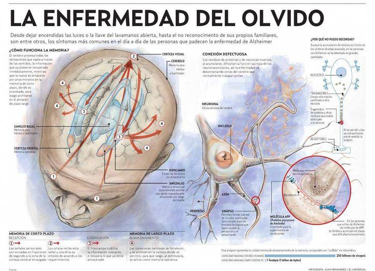 Alzheimer - la enfermedad del olvido #infografia #infographic #health #infographicshealth