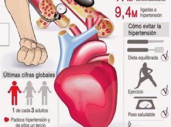 Hipertensión #Infografía #Salud #Enfermedad – #Infografia #Alzheimer #Demencias