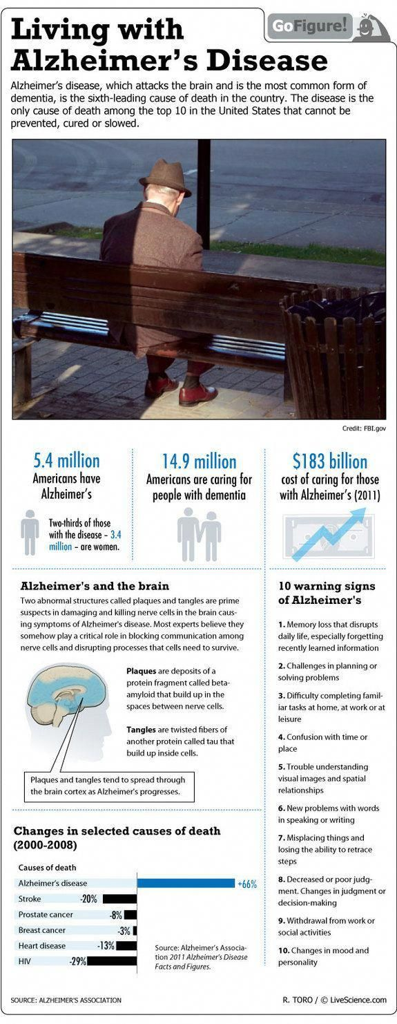 Living With Alzheimer's in the U.S. (Infographic)