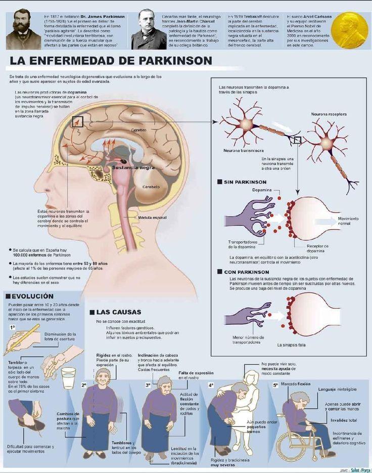 #Salud 11 de abril, Día Internacional del Mal de Parkinson. Efeméride busca co...