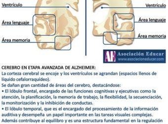 Infografía Neurociencias: Alzheimer.  Material de uso libre, sólo se pide cita… – #Infografia #Alzheimer #Demencias