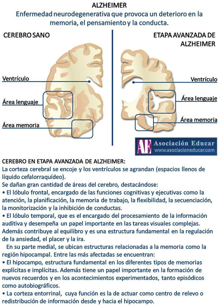 Infografía Neurociencias: Alzheimer.  Material de uso libre, sólo se pide cita...