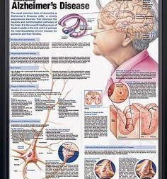 Understanding Alzheimer's Disease anatomy poster discusses the aging brain, … – #Infografia #Alzheimer #Demencias