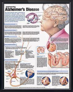 Understanding Alzheimer's Disease anatomy poster discusses the aging brain, ...