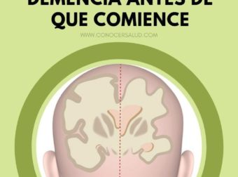 9 hábitos que necesita adoptar hoy para detener la demencia o el mal de Alzheim… – #Infografia #Alzheimer #Demencias