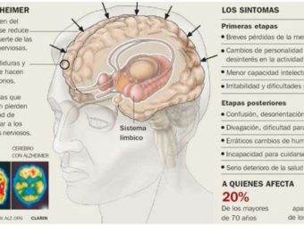 Infografia alzheimer laredinformacion | Pearltrees – #Infografia #Alzheimer #Demencias