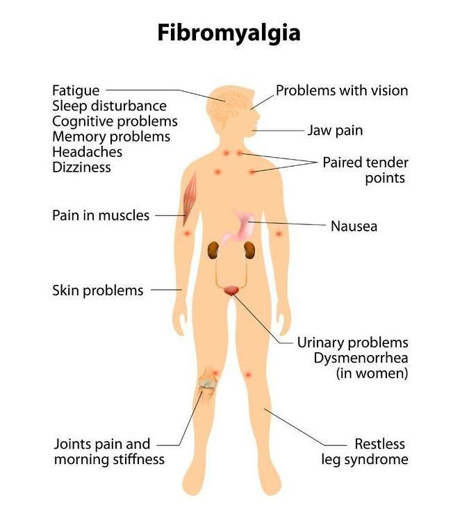 Fibromyalgie | gezondheid.be
