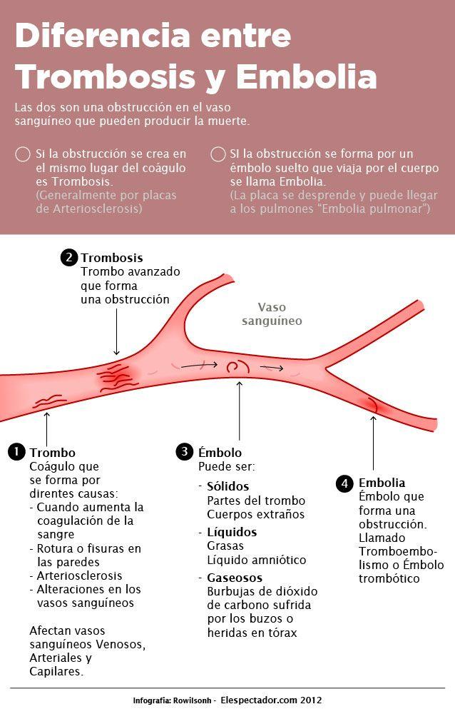 Diferencia entre Trombosis y Embolia | ELESPECTADOR.COM