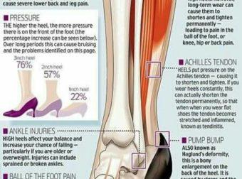 Read Me If You Have Knee Pain! – #Infografia #Alzheimer #Demencias