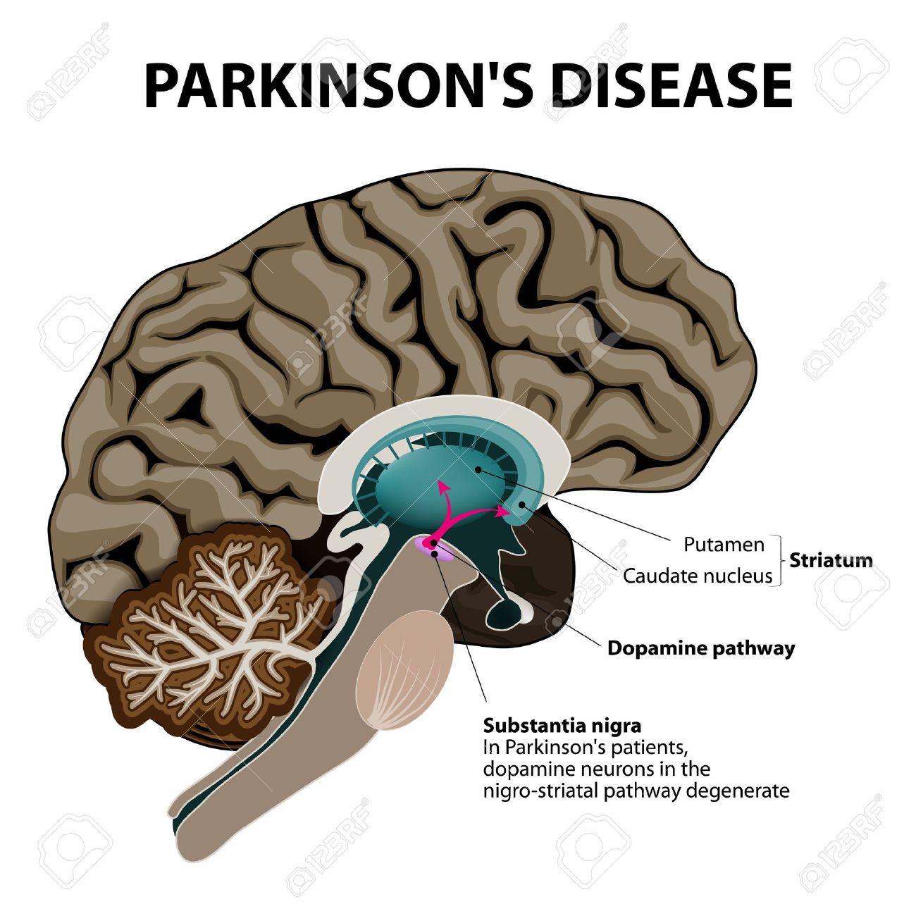 CDB en Parkinson