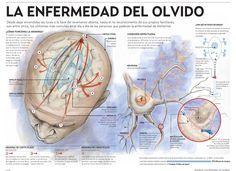 Alzheimer – la enfermedad del olvido #infografia #infographic #health