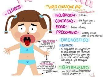Pie-mano-boca – #Infografia #Alzheimer #Demencias