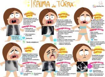 Trauma de tórax – #Infografia #Alzheimer #Demencias