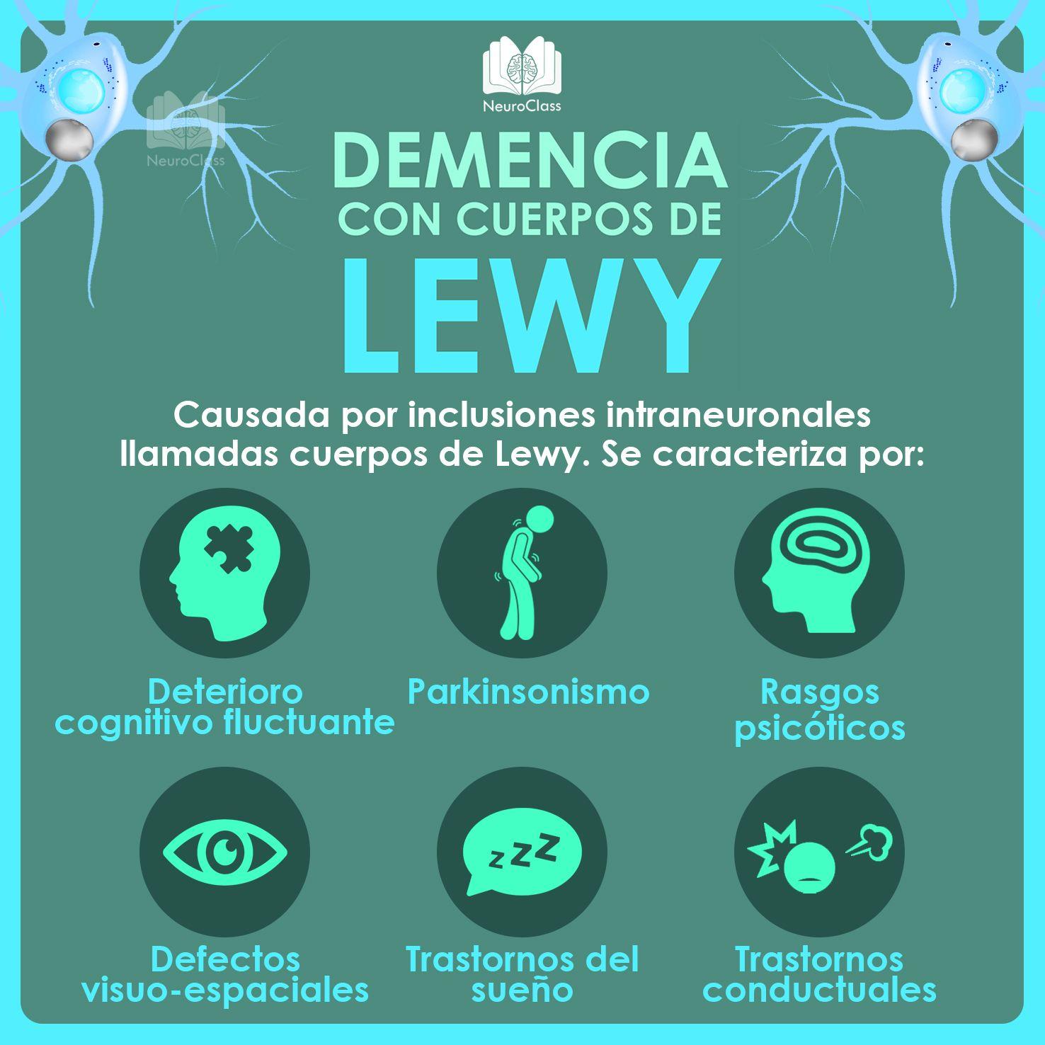 Demencia con cuerpos de Lewy