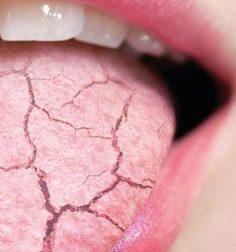 Enfermedades bucales relacionadas con la Fibromialgia – #Infografia #Alzheimer #Demencias