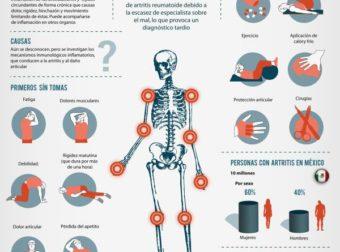 Artritis reumatoide #infografia #inographic #health – #Infografia #Alzheimer #Demencias