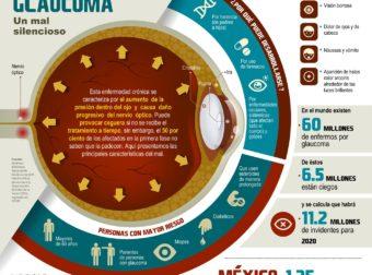 A Glaucoma Resource in Spanish – #Infografia #Alzheimer #Demencias