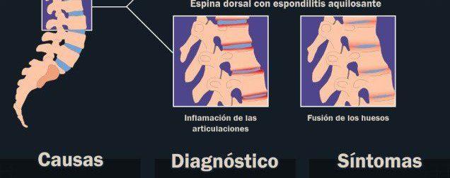 Espondilitis anquilosante #infografia – #Infografia #Alzheimer #Demencias